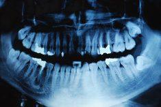 root canals holistic dentist castlebar mayo ireland eire