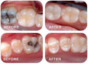 holistic, mercury free dentist Castlebar ,Mayo